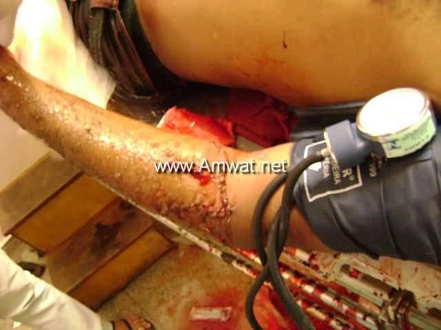 Poignardé et tué une personne avec un couteau 1124-15034ec